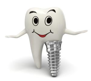 dantu-implantai